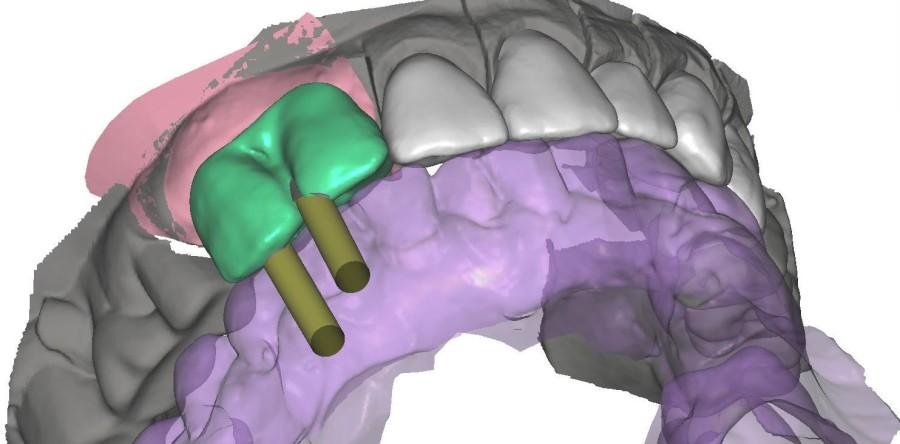 Rehabilitación combinada con implantes atornillados, metal cerámica y jacket con Estudio Estético via INTERNET