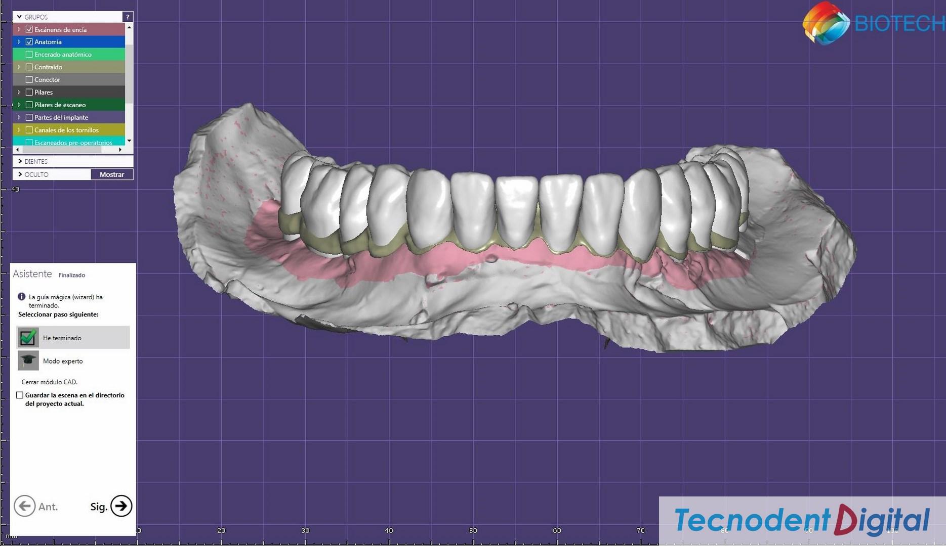 Rehabilitacion sobre implantes Exocad thimble coronas dientes a tope