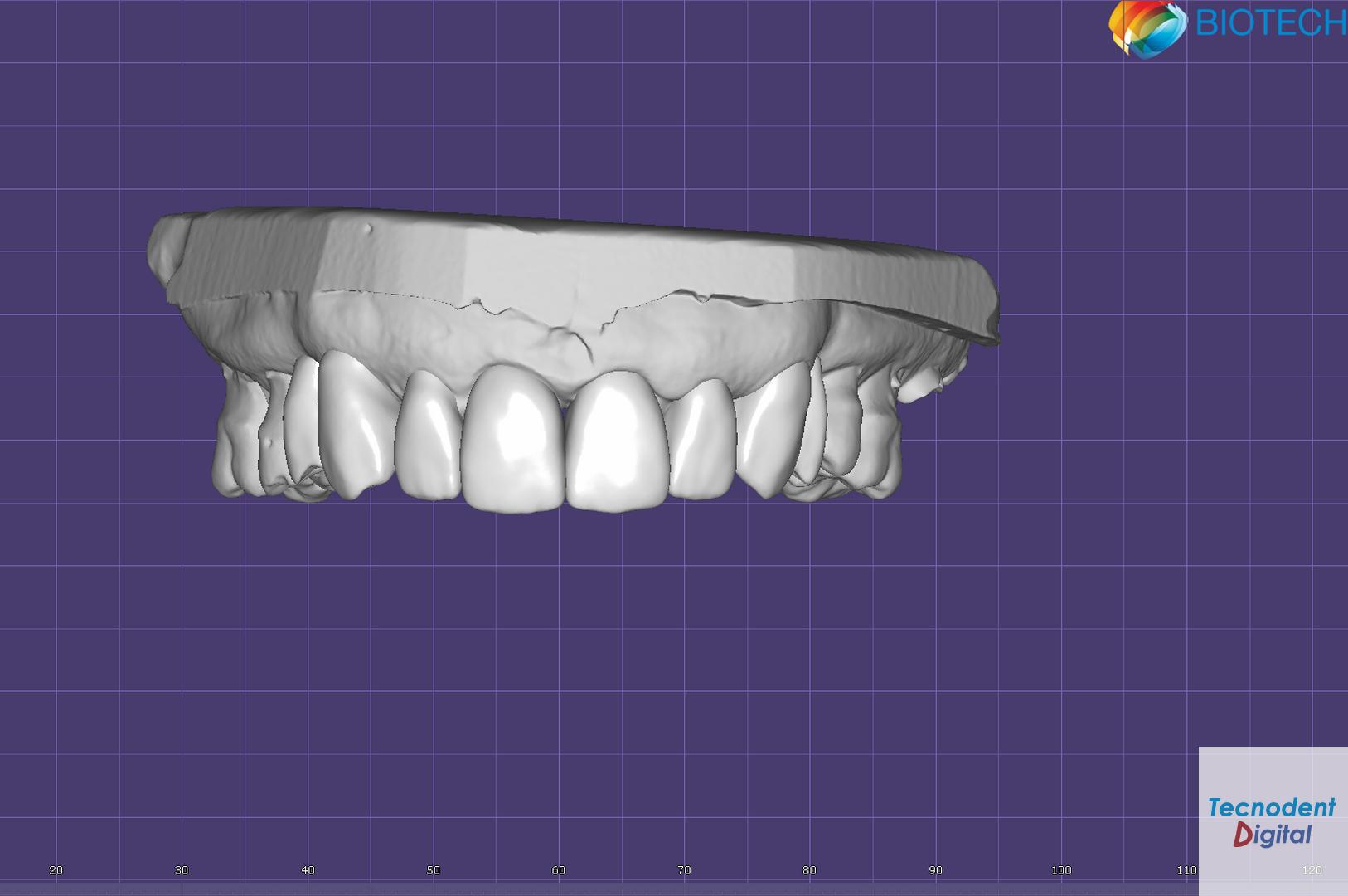 Estudio Estético Exocad Diseño Dental 3D Modelos Mock Up