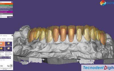 Rehabilitacion sobre Implantes 2