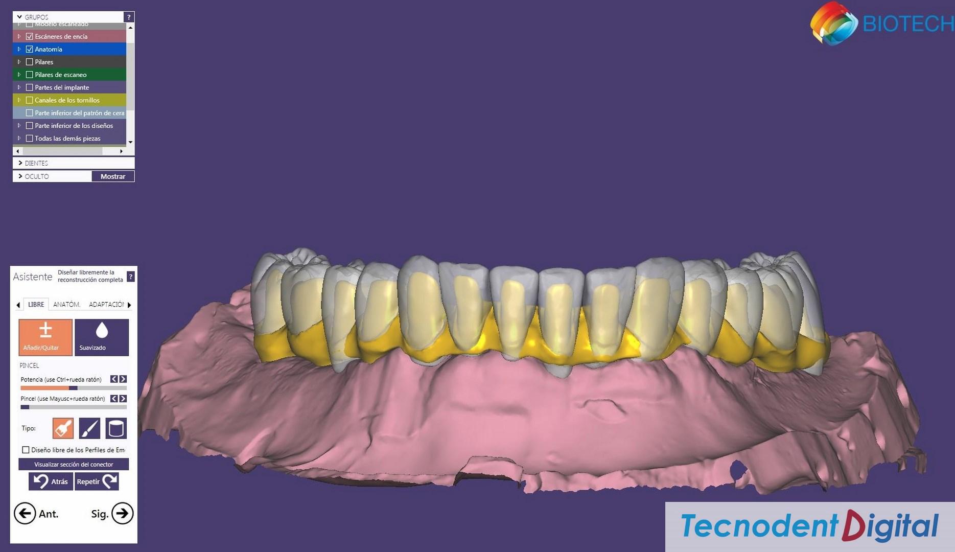 Exocad diseño 3D CAD CAM