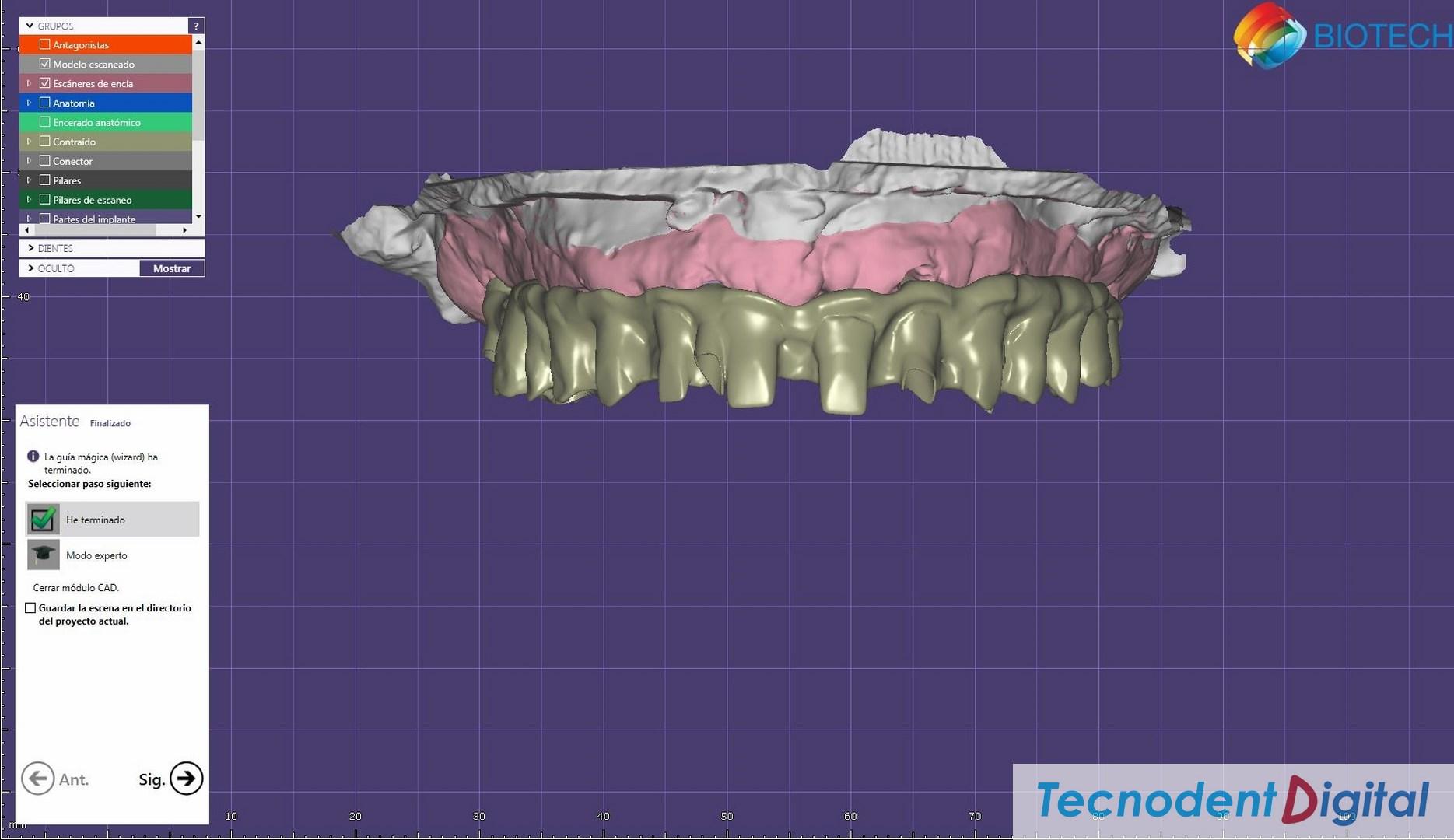 Rehabilitacion sobre implantes Exocad thimble para coronas