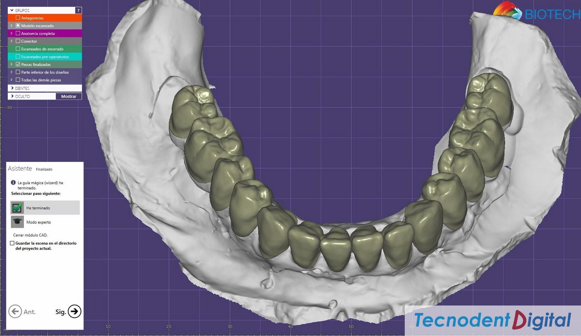 Rehabilitacion sobre implantes Exocad thimble coronas