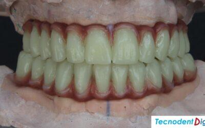 Rehabilitación Oral Integral 8