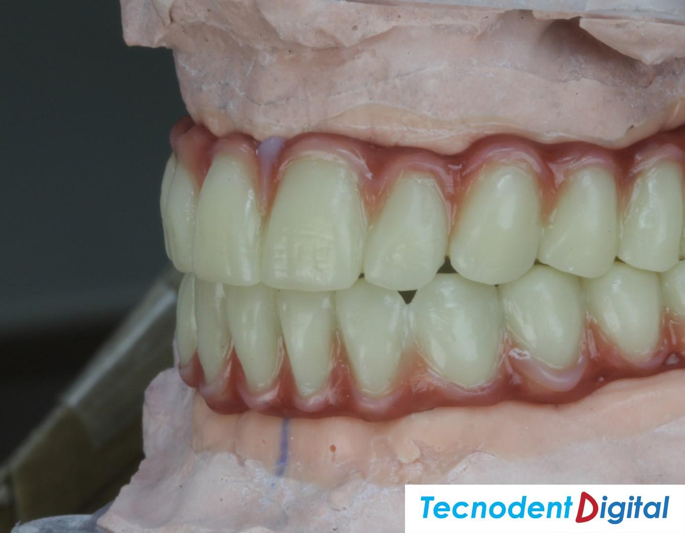 Diseño Exocad Implantes