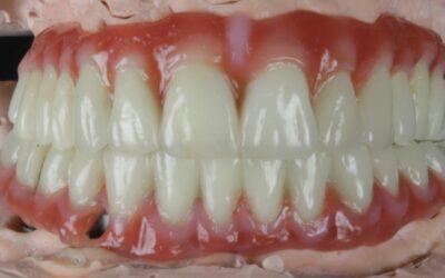Rehabilitacion Sobre Implantes 1