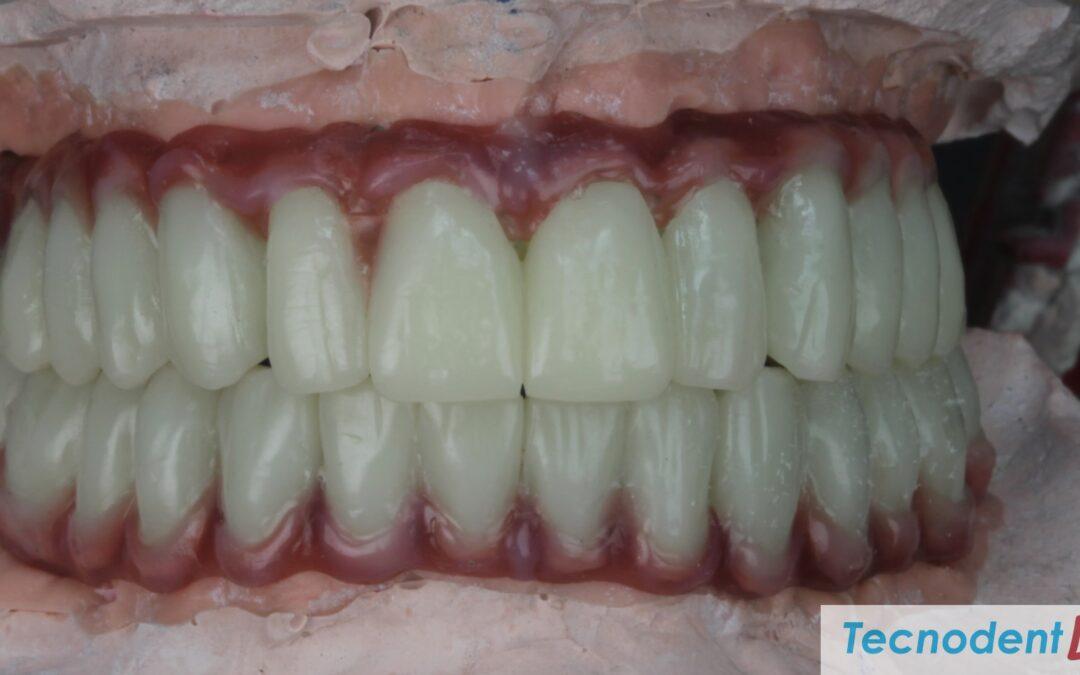 Rehabilitacion Implantes Exocad canal ocultado coronas cementadas HIPC Bredent
