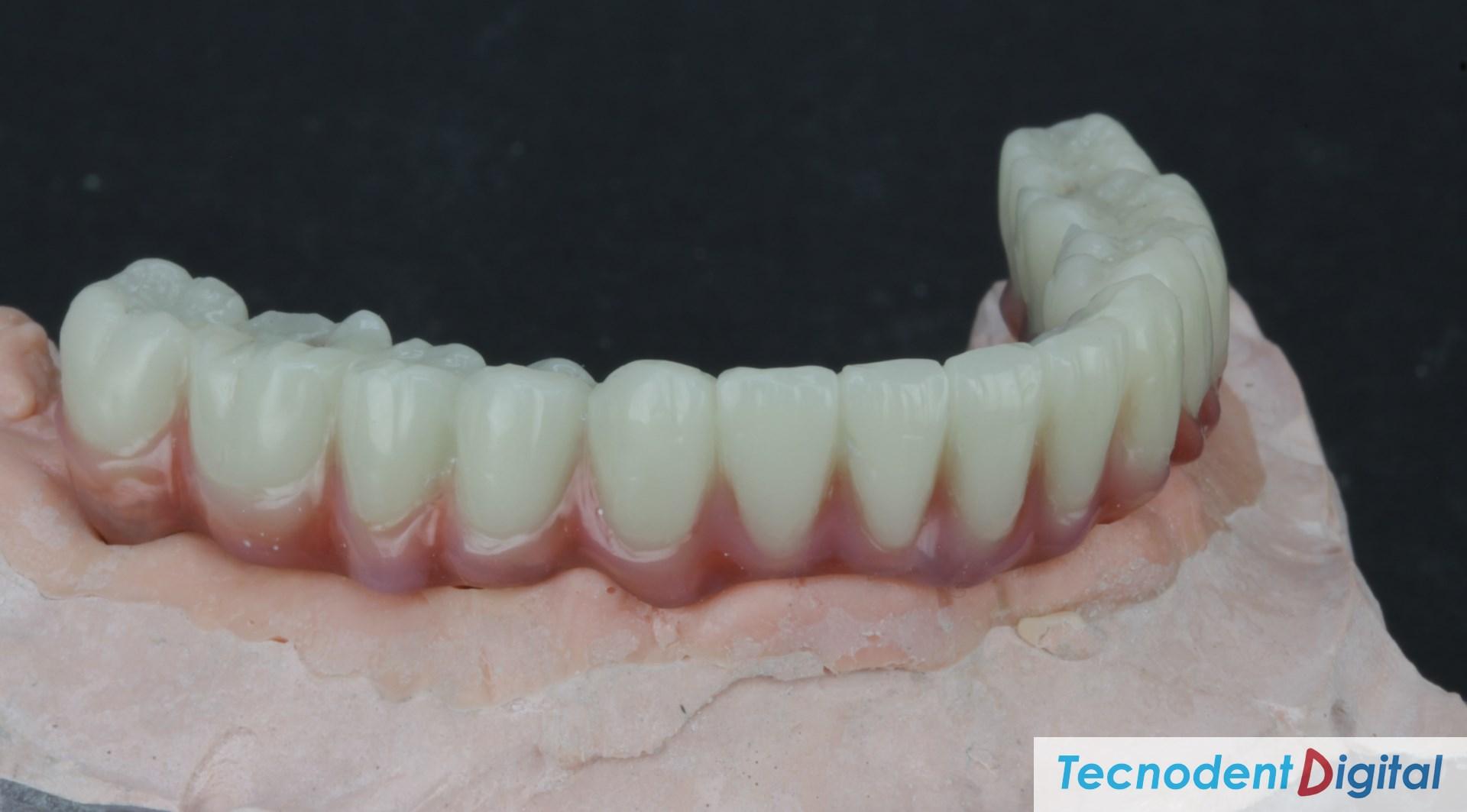 Rehabilitacion implantes Exocad thimble coronas HIPC