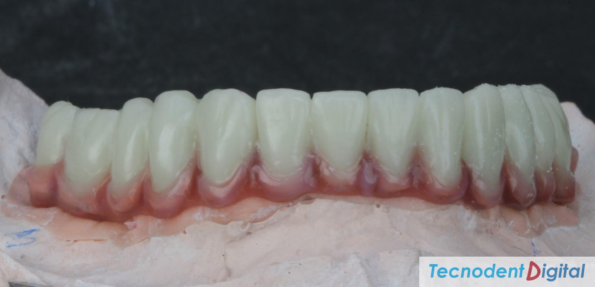Rehabilitacion sobre implantes Exocad thimble para coronas y gingiva