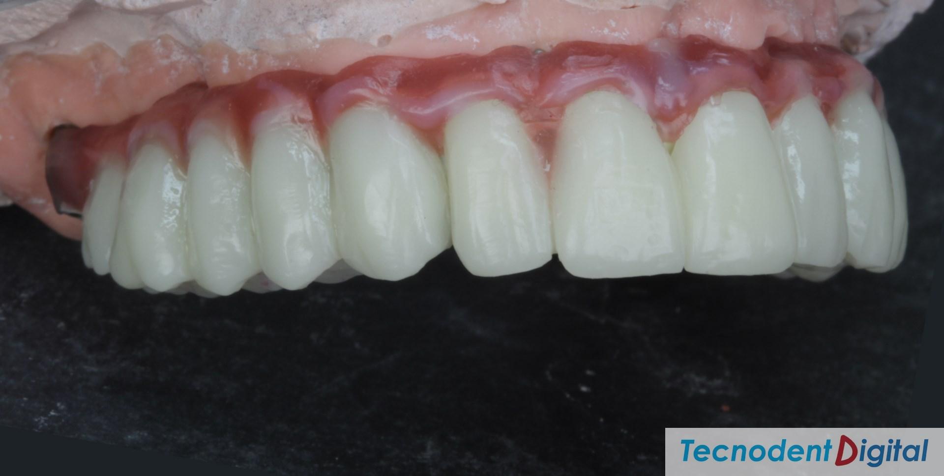 Rehabilitacion sobre implantes Exocad thimble coronas HIPC canal ocultado y gingiva