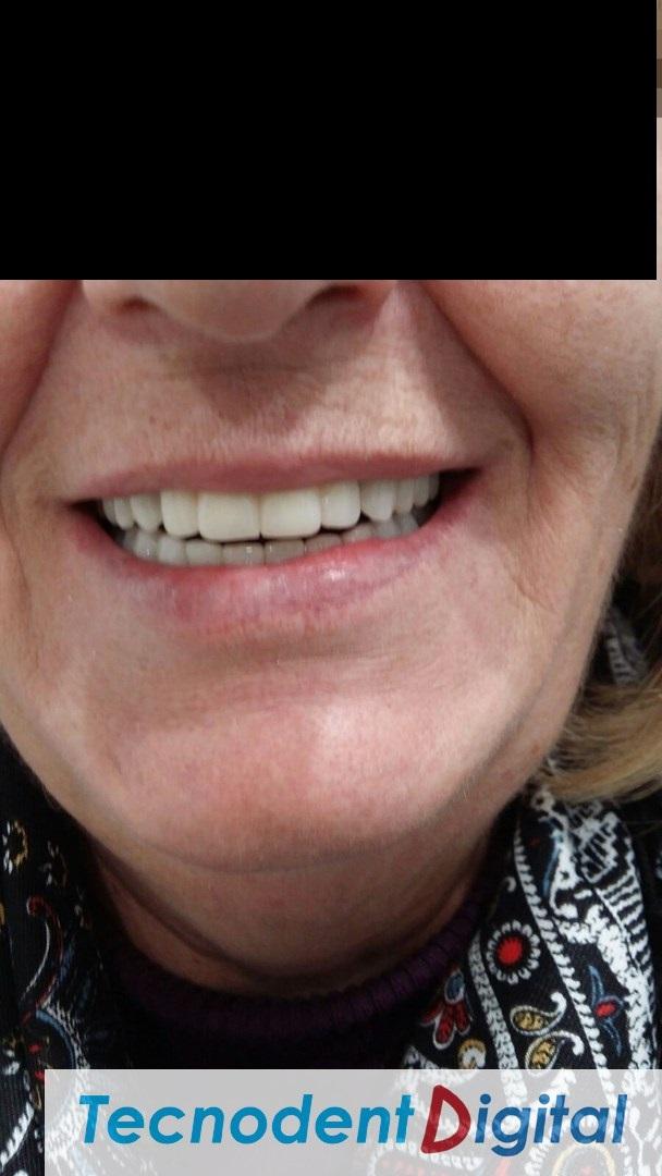 Rehabilitacion implantes Exocad thimble coronas HIPC canal emergente vestibular ocultado y gingiva
