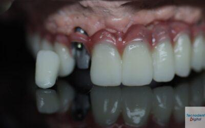 Rehabilitacion sobre Implantes 6