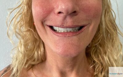 Rehabilitacion sobre Implantes 7