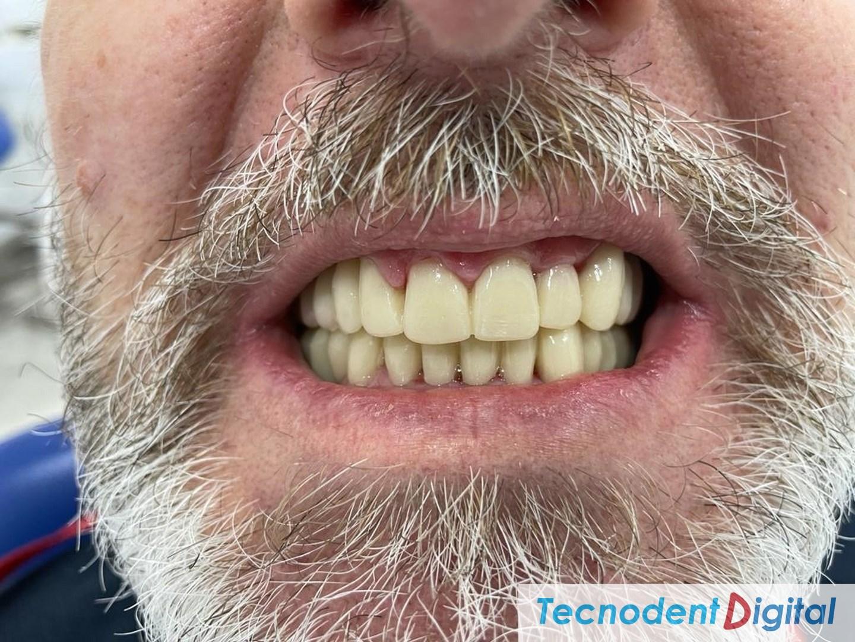 Coronas-de-zirconio-implantes-metal-ceramica-Rehabilitacion-oral-Laboratorio-Gandia
