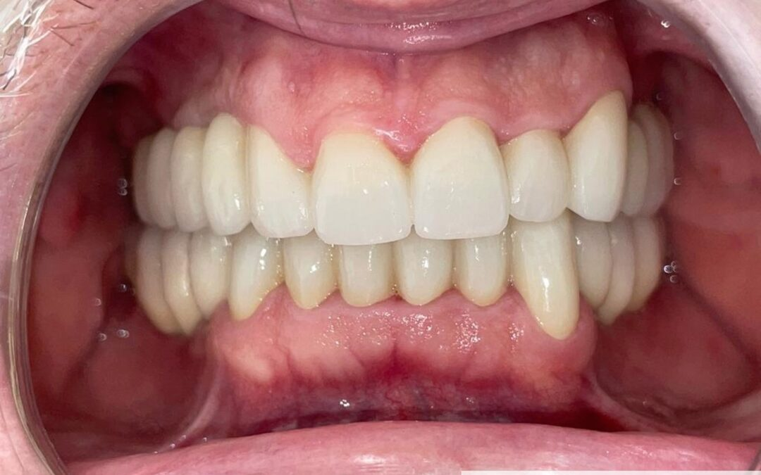 Rehabilitacion Oral Completa combinada